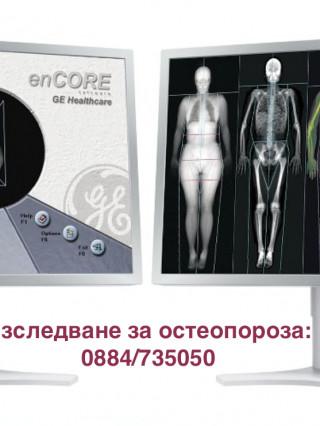 Изследване на костна плътност (остеоденситометрия), МЦ Д-р Атанасов